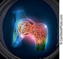 Human hip joint and Osteoporosis on a abstract blue...