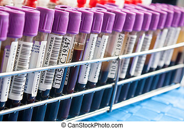 select focus tube of blood exam - select focus tube and rack...