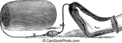 An apparatus for the application of oxygen on a limb gangrene, vintage engraving.