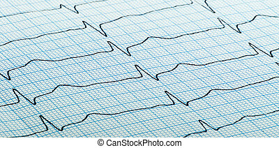 cardiogram of heart beat - cardiogram (aka...