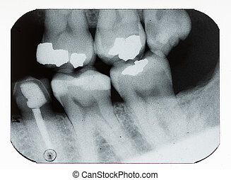 dental xray showing fillings and missing teeth