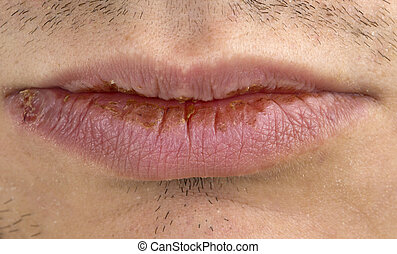 Manifestation of herpes - Monafestation of herpes on young...