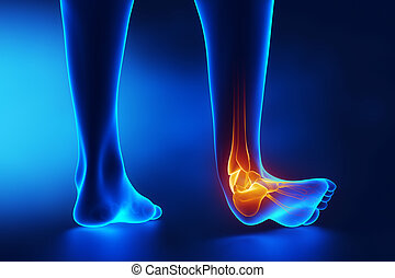 Sprained ankle blue x-ray