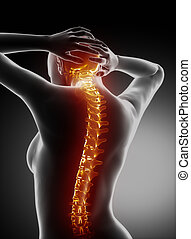Female backbone anatomy - cervical spine pain