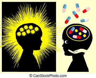 Epilepsy Medication - Epileptic seizure caused by abnormal...