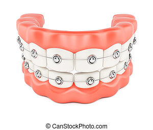 Jaws with dental braces isolated on white background. 3d...