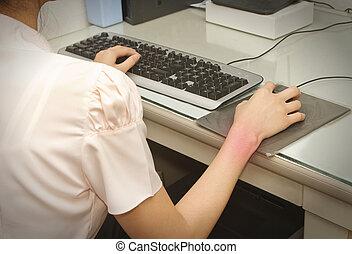 pulso, dor, trabalhando, computador, carpal, túnel,...
