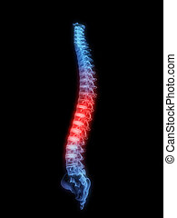 painful spine - 3d rendered x-ray illustration of a...