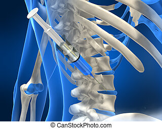 disc injection - 3d rendered illustration of a human spine...