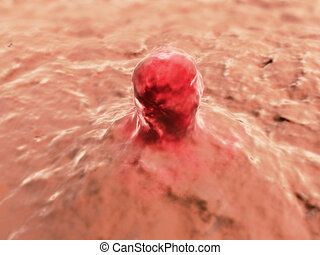 cancer cell - 3d rendered illustration of growing carzinoma