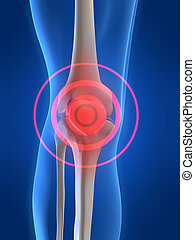 painful knee - 3d rendered x-ray illustration of a...