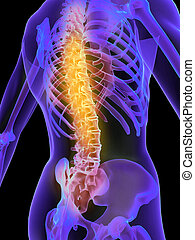 painful spine - 3d rendered illustration of a skeletal back...