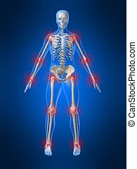 inflamed joints - 3d rendered illustration of a human...
