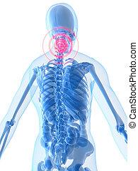 inflamed neck - 3d rendered illustration of a human skeleton...