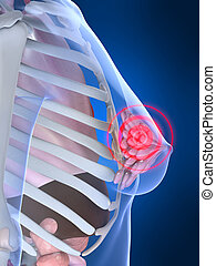 painful breast - 3d rendered illustration of a highlighted...