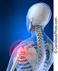 painful shoulder - 3d rendered illustration of a painful...