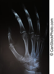Radiography of hand - Close up of radio of hand and fingers