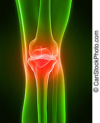 painful knee - 3d rendered of a human skeletal knee with...