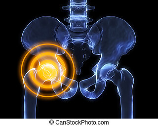 inflamed hip - 3d rendered x-ray illustration of human...