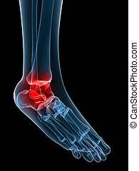 painful ankle - 3d rendered x-ray illustration of human...