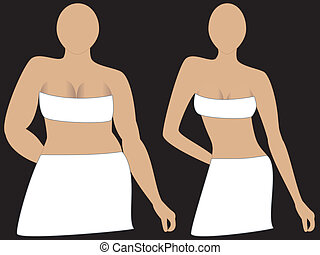 Breast Implants - Weight Loss, before and after. Could be...
