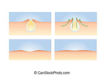 4 Step Acne Skin Treatment - A illustration about guide step...