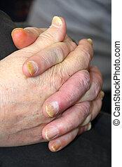unhealthy nails