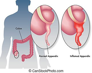 appendicitis - medical illustration of inflammation of the...
