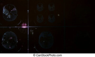 Glowing and radiant MRI scan