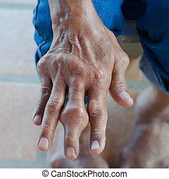 dedos, de, pacientes, con, gout.,