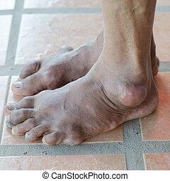 pie, de, gout, paciente,
