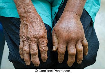 mordedura, mano, verde, inflamación, viperb, Izquierda,...