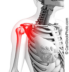 Human shoulder pain artwork - Illustration of shoulder pain...