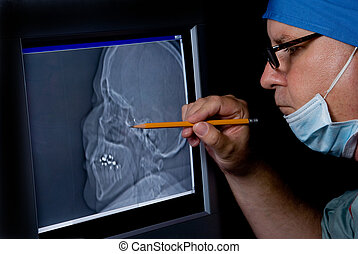 CTT Scan - A medical doctor examining a CTT Scan