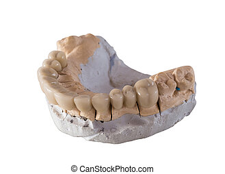 dental ceramic bridge isolated - close up for a mock up of a...