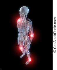 inflamed joints