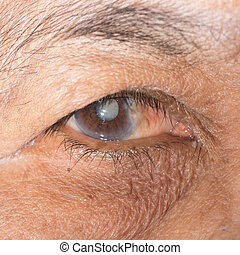 eye exam - Close up of the eye during ophthalmic examination...