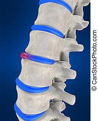 slipped disc - 3d rendered illustration of human spine with...