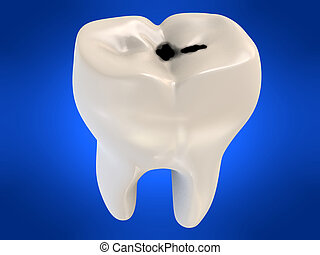 cavity tooth decay - 3d rendered illustration of a human...