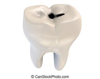 cavity tooth decay