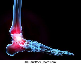painful ankle - 3d rendered x-ray illustration of a...