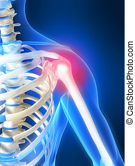 painful shoulder - 3d rendered illustration of a highlighted...