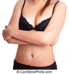 scars from deliberate self-harm - female torso with scars...
