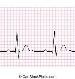 médico, electrocardiogram, ,