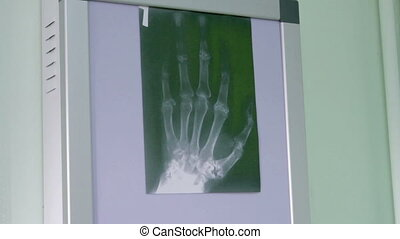 Doctor examines an X-ray - Doctor diagnoses violations bone...