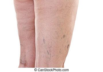 pernas, com, varicose, veias,