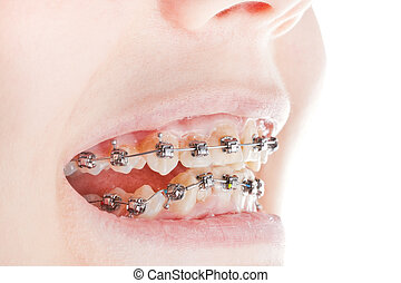 dental braces on teeth close up during orthodontic treatment
