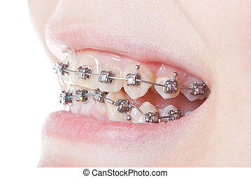 side view of dental braces on teeth close up during...