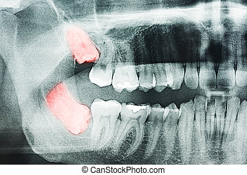 Wisdom Teeth Pain On X-Ray - Growing Wisdom Teeth Pain On...