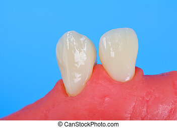 two tooth in the gum isolate in blue